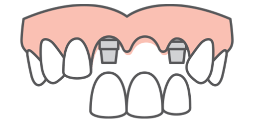 Three-tooth implant restoration ready to fill a gap by attaching it to two dental implant fixtures at each end of gap