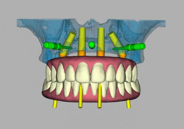 3D model of a full set of teeth with dental implants.